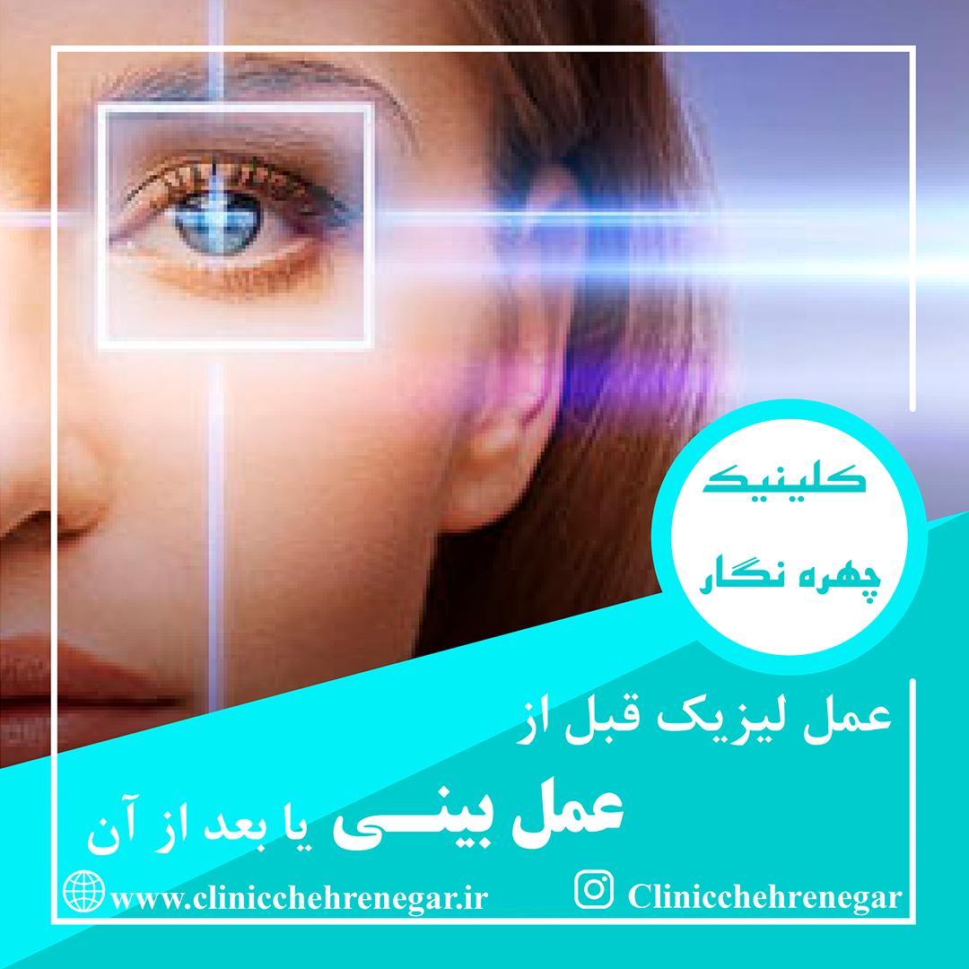 عمل جراحی لیزیک چشم